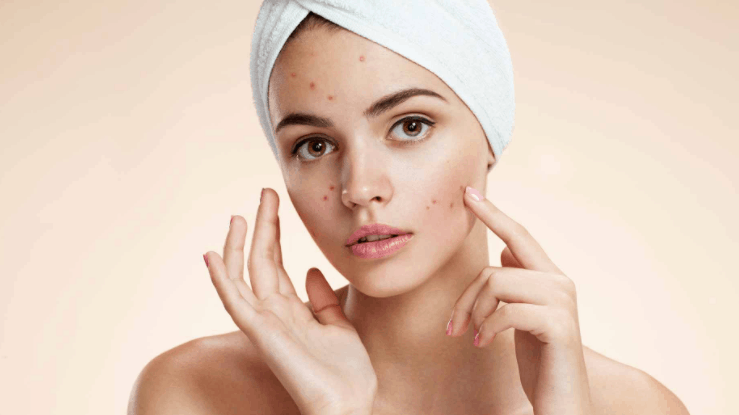 Acne Treatment Home Remedies And Everything You Need To Know About Causes