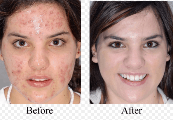 How To Get Rid Of Spots On Your Face- Proven And Tested Acne Treatment