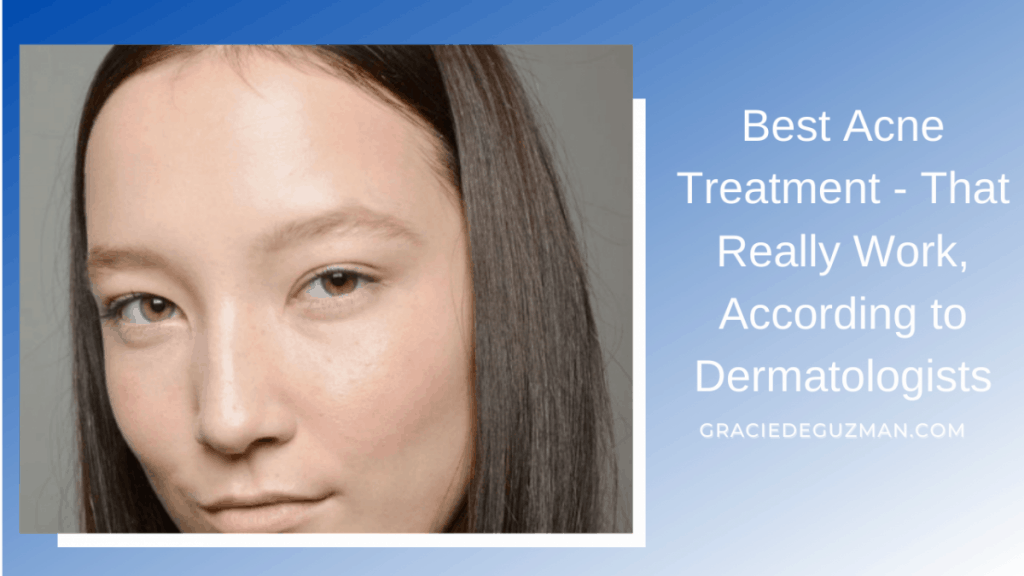 Best Acne Treatment - That Really Work, According to Dermatologists
