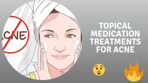Topical medication Treatments For Acne