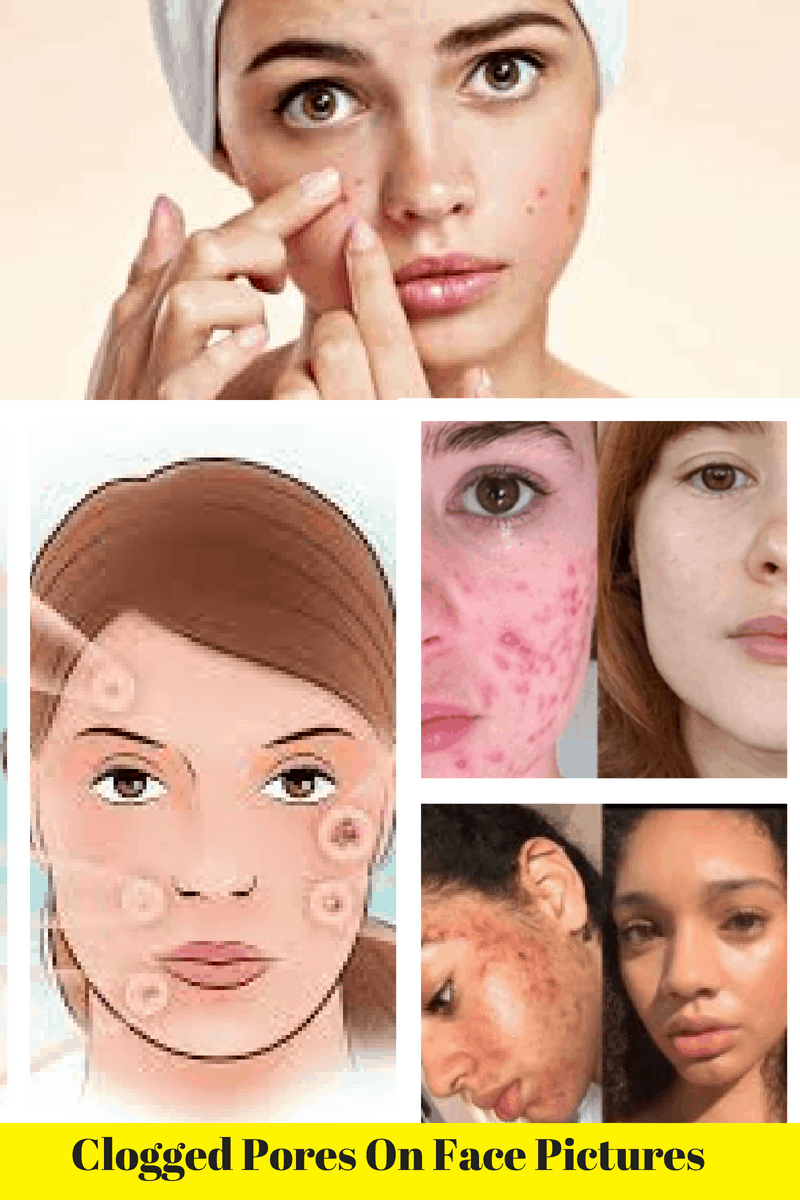 Clogged Pores On Face Pictures