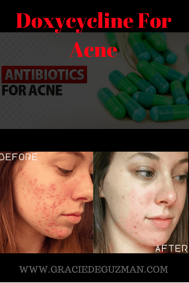 Doxycycline For Acne
