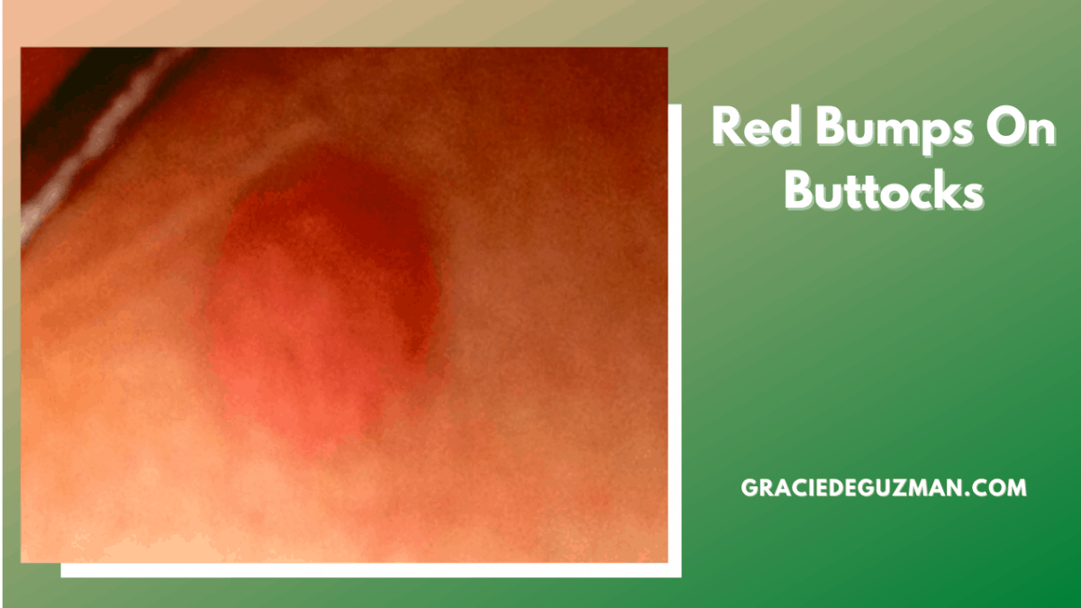 Red Bumps On Buttocks