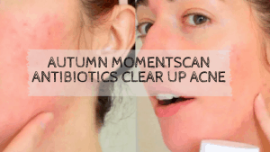 Can Antibiotics Clear Up Acne