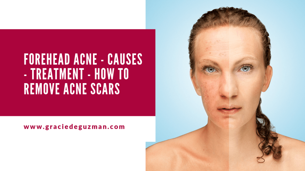 Forehead Acne Caused By Hormonal Changes