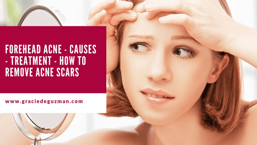FOREHEAD ACNE - CAUSES - TREATMENT - HOW TO REMOVE ACNE SCARS