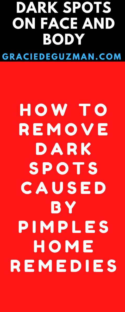How To Remove Dark Spots Caused By Pimples Home Remedies